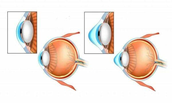 keratokonus statistika ocna poliklinika medic jukic split 12