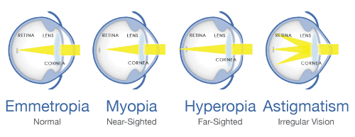 refractive errors of the eye ophthalmology clinic medic jukic