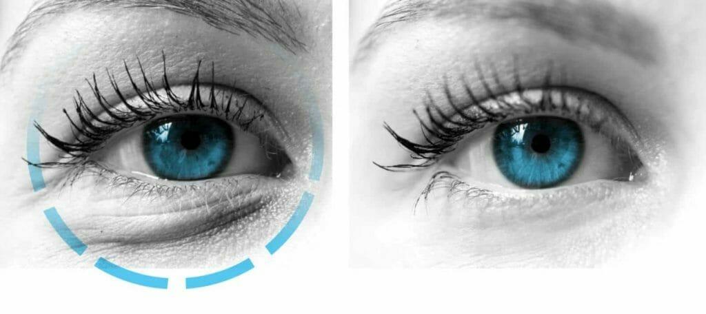 kirurski zahvati ocna poliklinika medic jukic