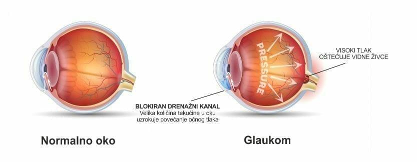 Povišen očni tlak - Očna poliklinika Medić Jukić Split