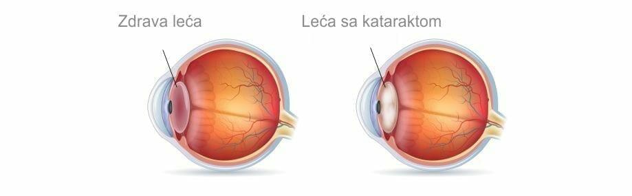 leca s kataraktom ocna poliklinika medic jukic