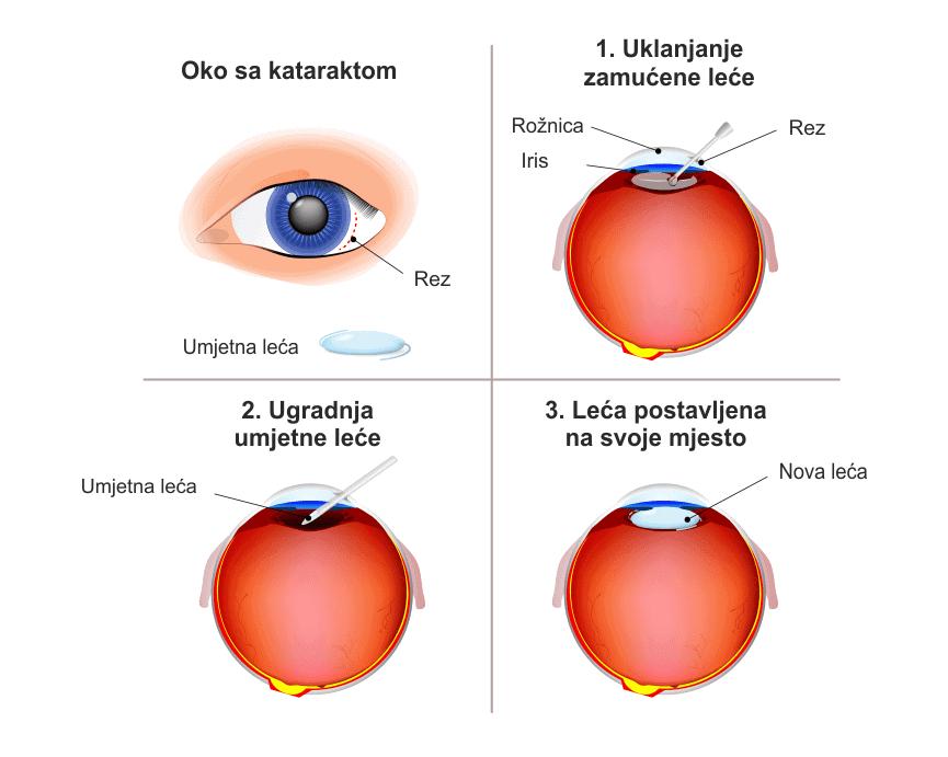 postupak ugradnje lece ocna poliklinika medic jukic
