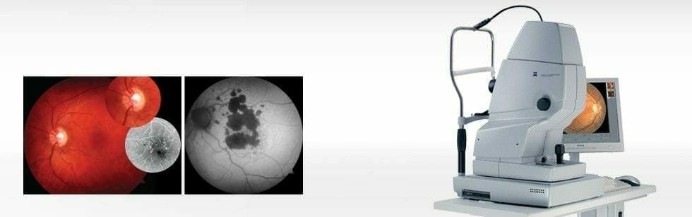 dijagnostika ocna poliklinika medic jukic 12