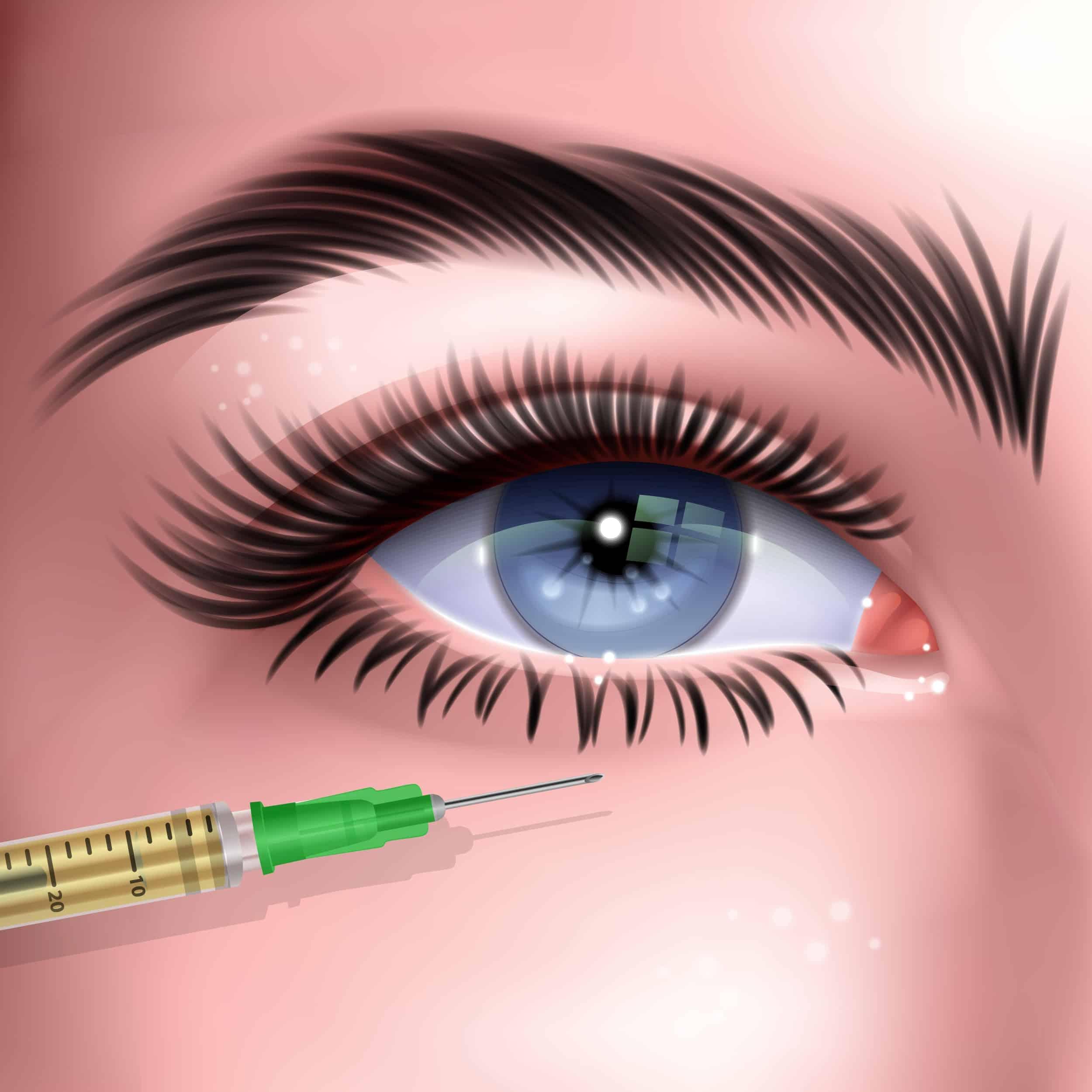intraviteralne injekcije ocna poliklinika medic jukic