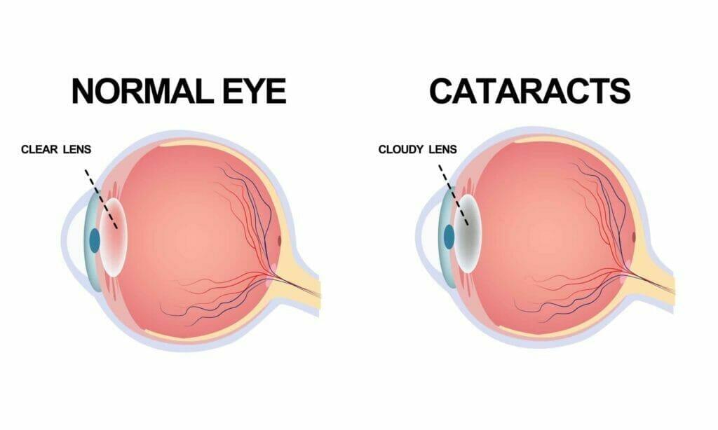 kombinirana operacija mrene i glaukoma ocna poliklinika medic jukic
